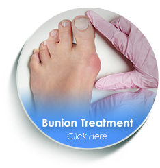 dallas tx podiatrist bunion treatment