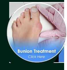 dallas tx podiatrist bunion treatment