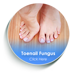 dallas tx podiatrist toenail fungus