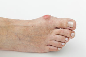 Non-Surgical Options for Bunions
