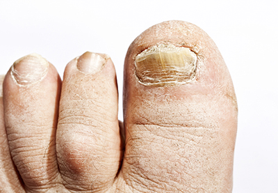 Treatment for Toenail Fungus