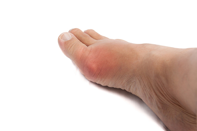 gout dallas tx podiatrist