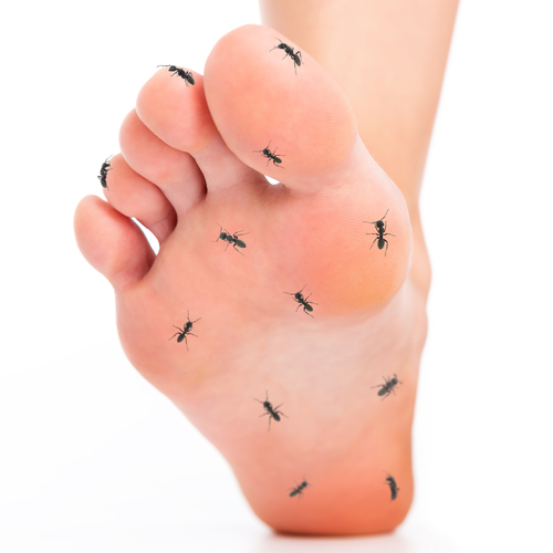 neuroma-treatment-in-dallas
