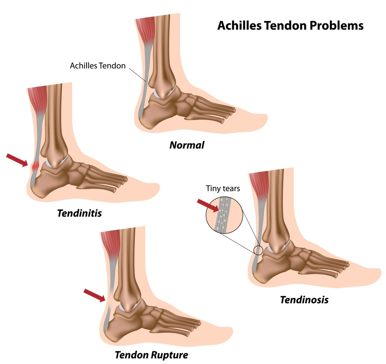 Ankle Achilles Tendon Diagram - DIY Enthusiasts Wiring Diagrams •