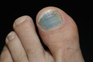Causes & Symptoms of Black Toenails