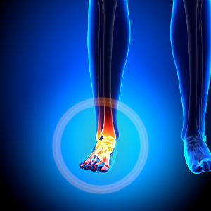 Plano Podiatrist Shares Midfoot Injury & Treatment