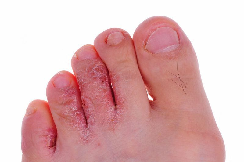 feet skin conditions