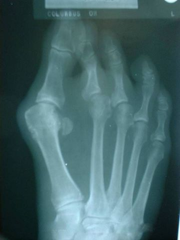 What Causes Bunions: The Culprits of Your Pain