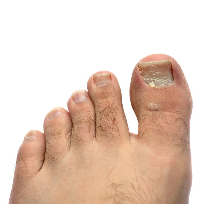 Ingrown Toenails Cause Red, Swollen, and Painful Toes