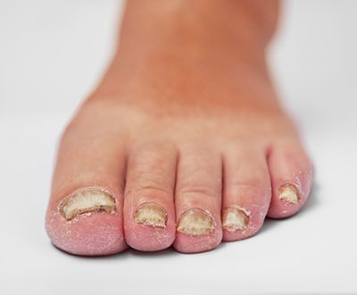 What is a Toenail Fungal Infection