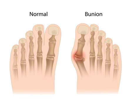 bunion surgery dallas tx