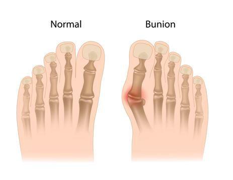 bunion surgery dallas tx