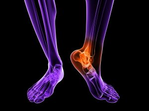 Diagnosing Your Foot Pain with Digital X-Rays