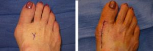 Bunion Treatment Dallas Podiatry Works