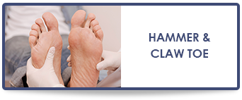 hammertoe treatment in dallas texas