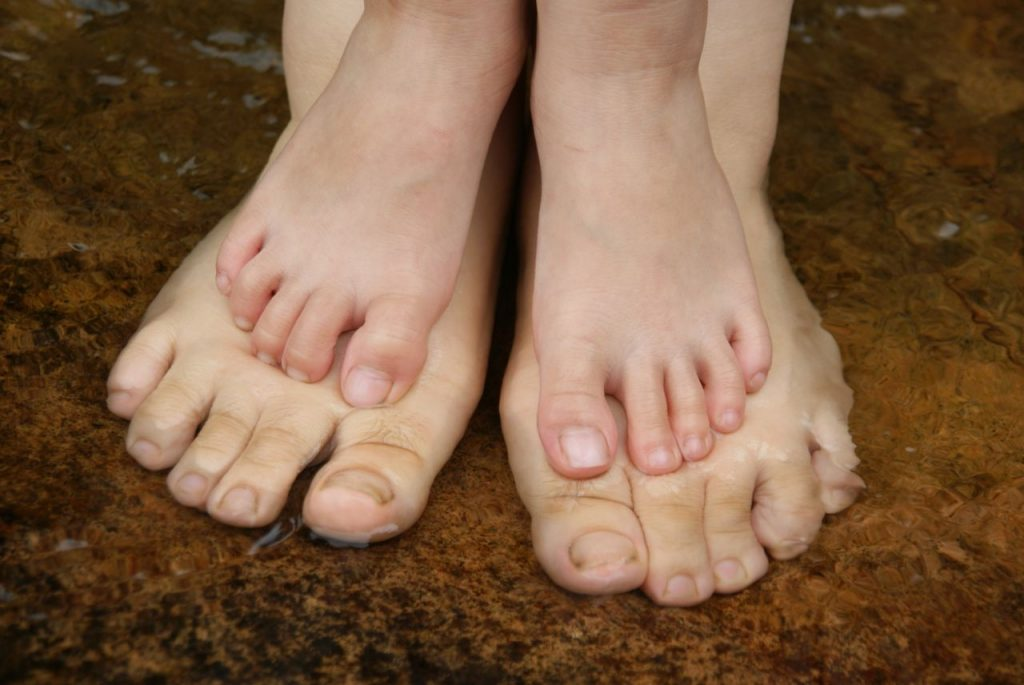Common Foot Disorders in Children