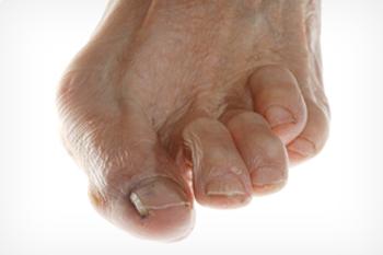 plano tx foot doctor, hammertoe treatment