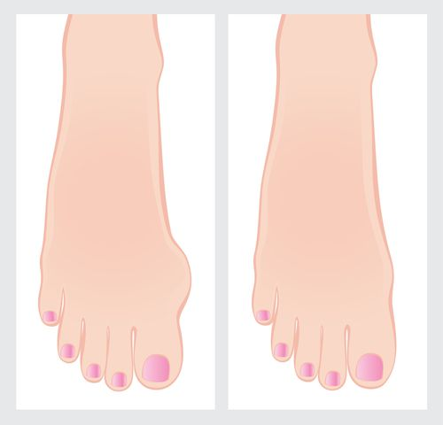 Pediatric Bunions - Plano Podiatrist