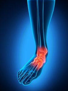 Effective Ankle Sprain Treatment