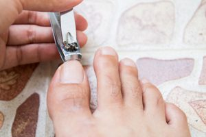 ingrown toenail causes and symptoms