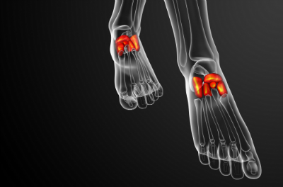 Midfoot Injuries