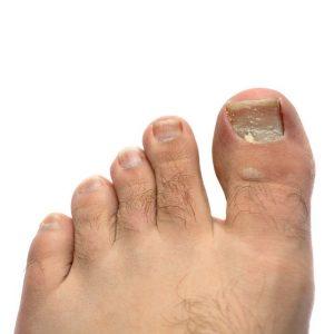 laser toenail fungus treatment dallas tx