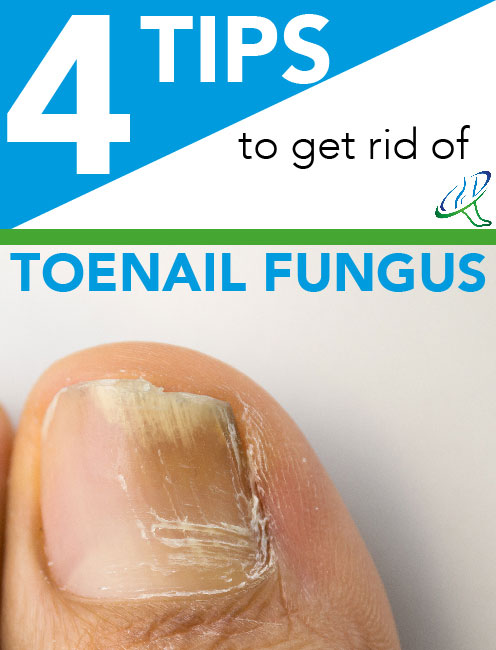Toenail Fungus Treatment | Dallas Podiatry Works