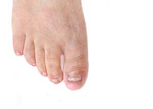 dallas toenail treatment