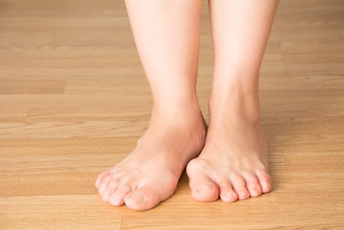How Well Do You Know Bunions