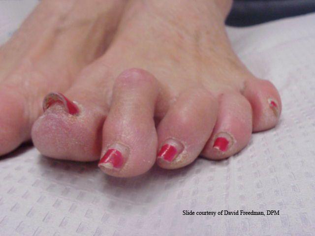 hammer toes symptoms - 640×480