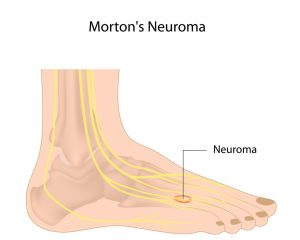 neuroma swollen nerves