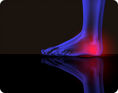 podiatrist in allen tx tarsal tunnel syndrome