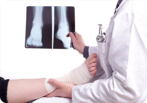 denton tx ankle doctor fracture vs break