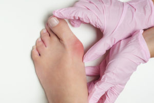 bunion surgeon in dallas tx